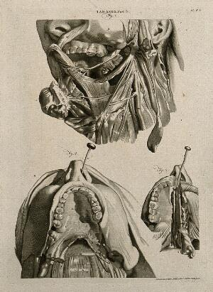 view Muscles of the tongue, mouth and throat, with interconnections to the nose: three figures. Line engraving by A. Bell after G. Bidloo, 1798.