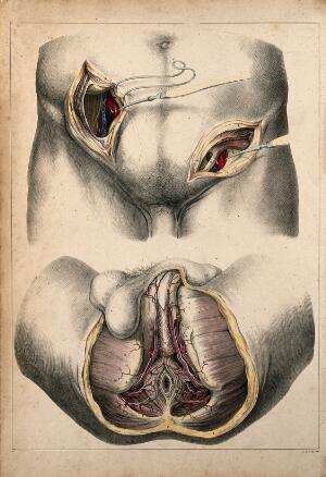 view Surgery of iliac arteries and male perineum: two figures showing dissections. Coloured lithograph by G.E. Madeley after A. A. Cane, 1834.