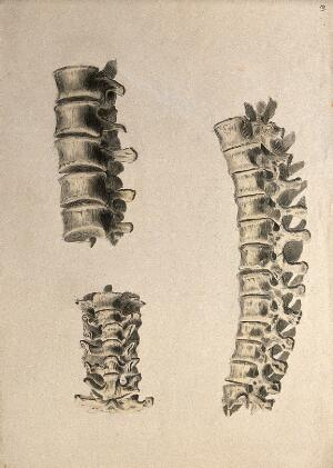 view Vertebrae: three figures. Ink and watercolour, 1830/1835?, after W. Cheselden, ca. 1733.