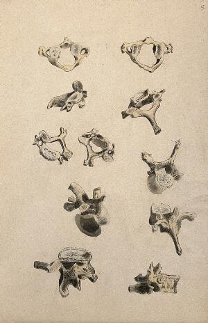 view Vertebrae: eleven figures. Ink and watercolour, 1830/1835?, after W. Cheselden, ca. 1733.