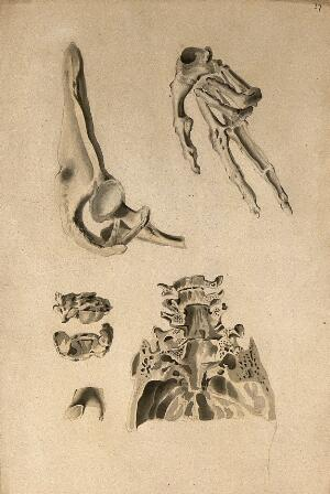 view Bones: four figures of various bones. Ink and watercolour, 1830/1835?, after W. Cheselden, ca. 1733.