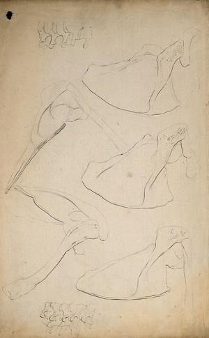 view Scapulae and vertebrae. Pencil drawing, 1804/1815(?).