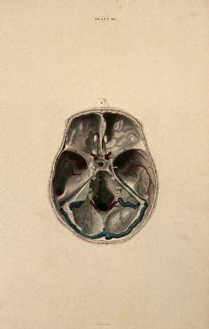view Skull: lateral section, with blood-vessels indicated in red and blue. Coloured line engraving by W.H. Lizars, ca. 1826.