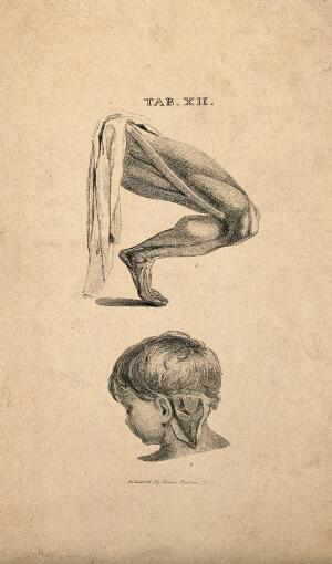 view Lower limb: écorché leg showing the sartorial muscle, and a partial dissection of the back of a young child's neck. Lithograph, 1825/1845(?).