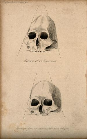 view Human skulls: two figures showing a skull of an Eskimo and a skull from a tomb near Niagara. Stipple engraving, 1843.