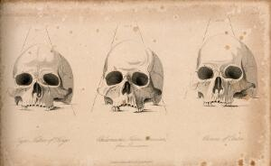 view Human skulls: three figures showing the skulls of an African, a Native American and a Chinese. Stipple engraving, 1843.