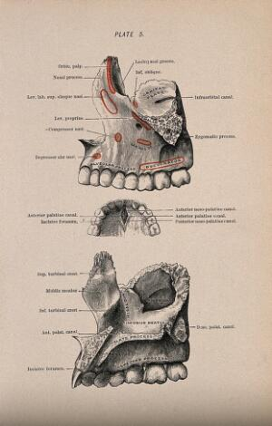 view Bones of the skull: three figures, showing the area around the teeth of the upper jaw. Colour wood engraving with letterpress, 1860/1900?