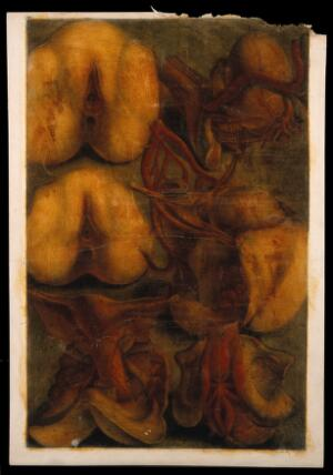 view Dissections of the female urogenital system: six figures. Colour mezzotint by J. F. Gautier d'Agoty after himself, 1754.