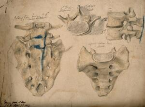 view The sacrum, shown with the second, third and fifth lumbar vertebrae: four figures. Watercolour, pencil and crayon drawing by J.C. Whishaw, 1853.