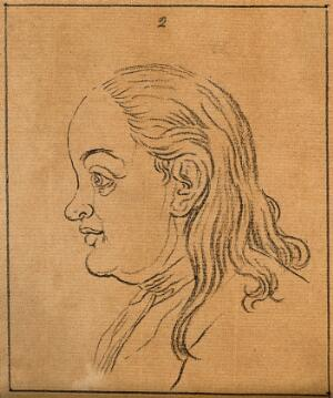 view A woman whose face exemplifies the phlegmatic temperament. Drawing, c. 1789.