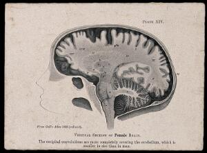 view A female brain, sectioned vertically: side view. Process print, 1901, after etching, 1809.