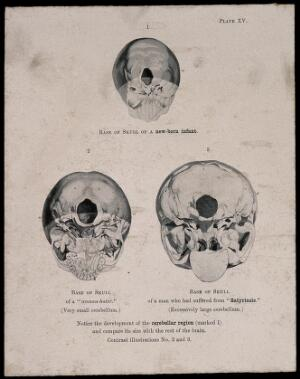 view The bases of three skulls: a new born infant's, a misognynist's, and a man suffering from satyriasis. Process print, 1901, after etching, 1809.