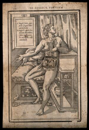 view Dissection of the abdomen of a pregnant woman expecting twins: the nude woman is shown seated on a bed, lifting two placentas to reveal the two foetuses. Woodcut, 1545.