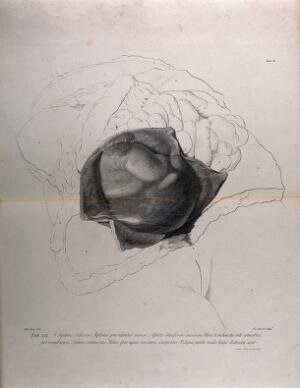 view Dissection of the female abdomen, showing part of the pregnant uterus at seven months, with the surrounding viscera. Copperplate engraving by F. Aliamet after A. Cozens, 1774, reprinted 1851.
