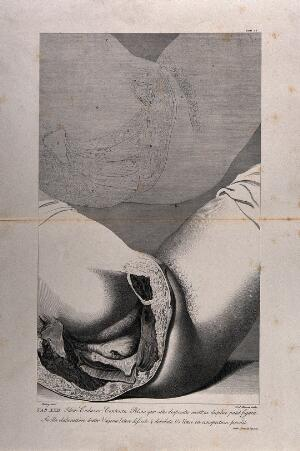 view Dissection of the female pelvis, showing part of the rectum and genital area, with an outline diagram above. Copperplate engraving by F. Aliamet after Blakey, 1774, reprinted 1851.