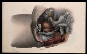 view The female reproductive system: dissection showing the sexual organs. Coloured line engraving by W.H. Lizars, ca. 1827.