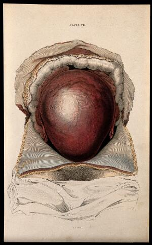 view Dissection showing the pregnant uterus. Coloured line engraving by W.H. Lizars, ca. 1827.