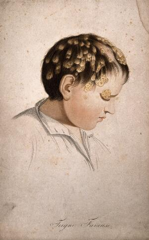 view Head of a boy with skin disease. Coloured stipple engraving by S. Tresca after Moreau-Valvile, c.1806.