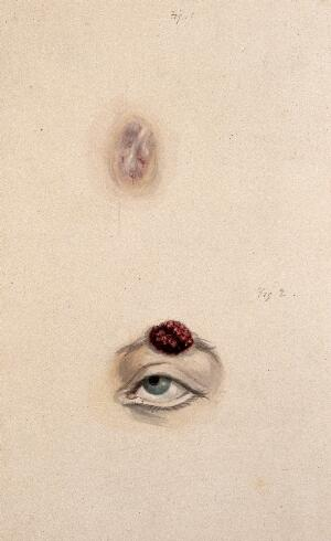 view A section of a child's diseased forehead (detail); and a child's diseased eyebrow, numbered for key. Watercolour, 1829.