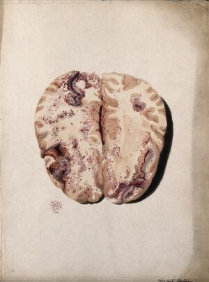 view Two sections of diseased brain. Coloured stipple etching by W. Say after F. R. Say for Richard Bright, 1829.
