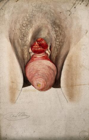view Female genitalia showing severely diseased tissue and symptoms of ectropia vesicae, with a complete prolapse of the uterus. Watercolour by Christopher D'Alton, ca. 1847.