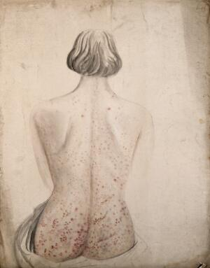 view Back and buttocks of a woman suffering from a rash of sores. Watercolour by C. D'Alton, ca. 1850.