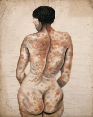 view Back and buttocks of a woman suffering from a disease affecting the skin. Watercolour by C. D'Alton, ca. 1850.