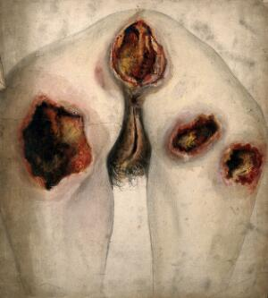 view Areas of severely diseased tissue on the buttocks and genitals of a woman. Watercolour by C. D'Alton, 1859.