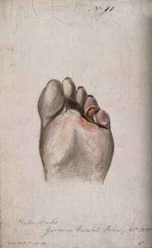 view Diseased skin on the toes and sole of a man's foot. Watercolour by C. D'Alton, 1857.
