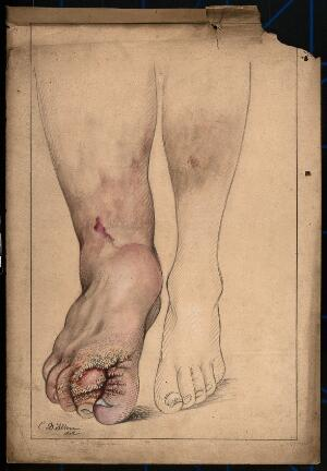 view Diseased and deformed foot, ankle and lower leg of a man. Watercolour by C. D'Alton, 1871.