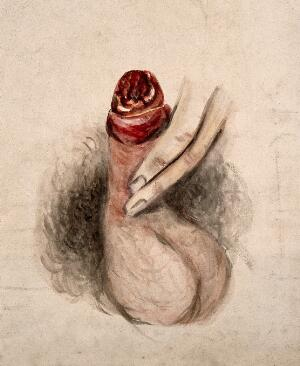 view A diseased penis, showing symptoms of inflammatory or moist gangrene. Watercolour by C. D'Alton, 1857.