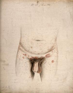 view The diseased genitals, groin, abdomen and upper legs of a man suffering from syphilis roseola. Watercolour by C. D'Alton, 18--.