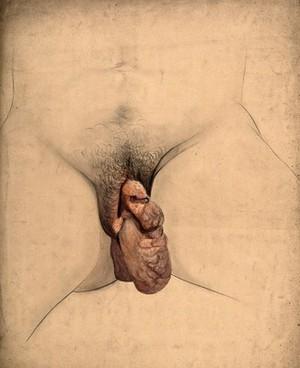 view Female genitalia showing symptoms of a prolapsed uterus. Watercolour by C. D'Alton, 18--.