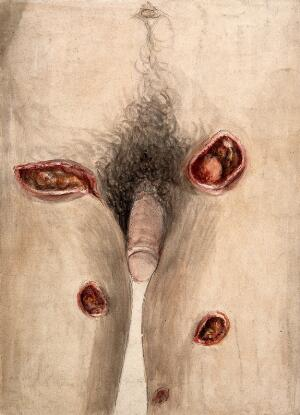 view Areas of severely diseased tissue on the thighs and groin of a man showing symptoms of perforating phagedena. Watercolour with chalk, by C. D'Alton, 18--.