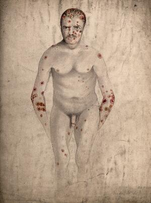 view A seated man suffering from abcesses (?) and diseased areas of skin on his face, head, arms, legs and torso. Watercolour by C. D'Alton, 1867.