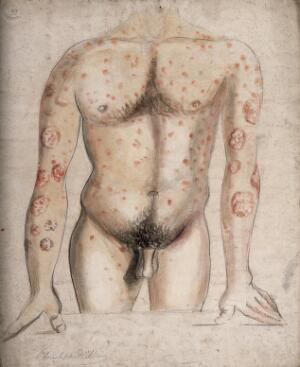 view The torso and arms of a man suffering from abcesses (?) and diseased areas of skin. Watercolour by C. D'Alton, ca. 1856.