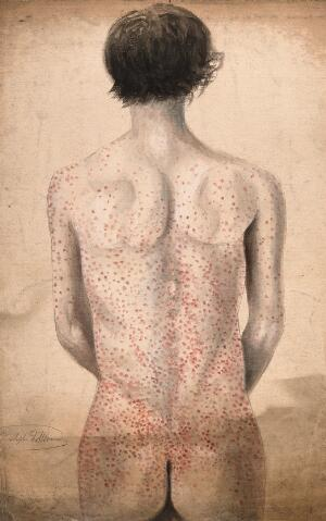 view The back, arms and buttocks of a man suffering from a rash of sores. Watercolour by C. D'Alton, 1858.