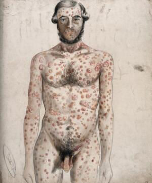 view Sores and abcesses (?) covering the face and body of a man. Watercolour by C. D'Alton, ca. 1853.