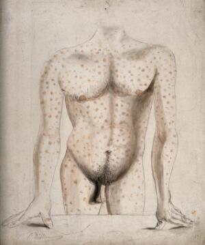 view The torso, arms and upper thighs of a man suffering from a rash of sores. Watercolour by C. D'Alton, ca. 1853.