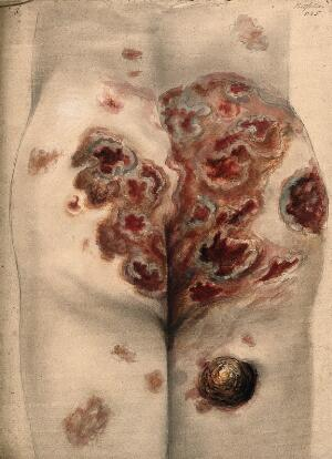 view Severely diseased tissue on the buttocks and thighs of a man. Watercolour by C. D'Alton, 1867.