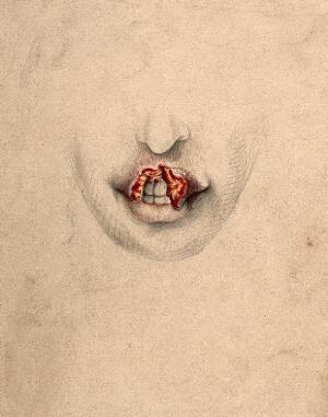view Severely diseased tissue on the upper lip of a woman suffering from tertiary syphilis. Watercolour by C. D'Alton, 1869.