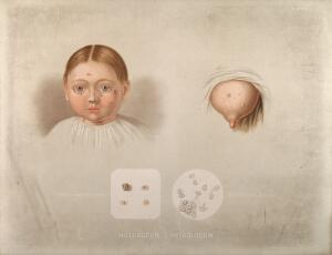 view Diseased skin on the face of a young girl suffering from molluscum contagiosum, shown beside a diseased breast, with two details below showing sebaceous follicles and cells as seen under a microscope. Chromolithograph by E. Burgess (?), 1850/1880?