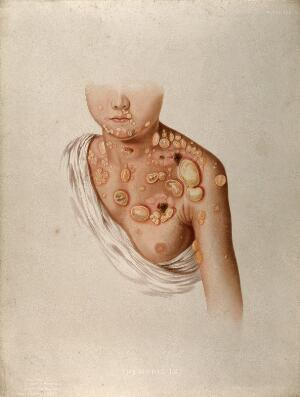 view Diseased skin and large blisters on the chest, neck, shoulders and face of a child suffering from pemphigus. Chromolithograph by E. Burgess, 1850/1880?
