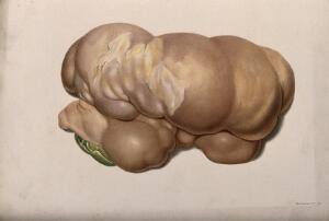 view A diseased part of the body. Chromolithograph, c. 1880.