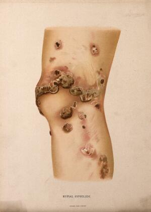 view A section of leg with a skin disease. Chromolithograph, c. 1888.