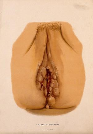 view Female genitalia with a skin disease surrounding the anus. Chromolithograph, c. 1888.