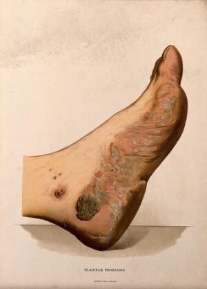 view A foot with a skin disease around the sole. Chromolithograph, c. 1888.
