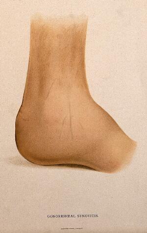 view A foot with a skin disease around the ankle. Chromolithograph, c. 1888.
