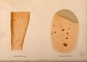 view Two parts of the body covered with a skin disease. Chromolithograph, c. 1888.