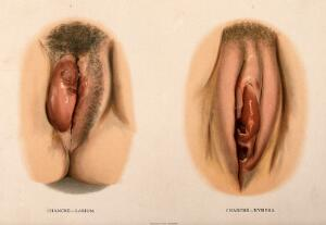 view Two examples of female genitalia with diseased labia. Chromolithograph, c. 1888.